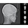 Дентальный 3D томограф Rayscan Symphony α-3D (9x9)